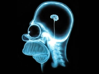 Homer Simpson's brain x-ray